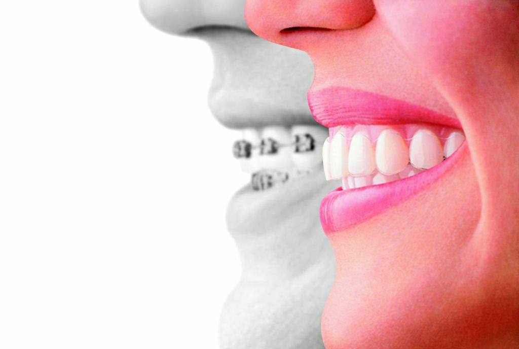 Invisalign, proven effective to replace braces